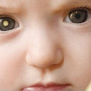Pediatric Retinoblastoma: How Screening Saves Lives