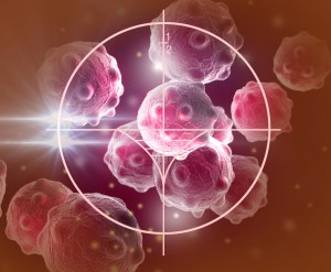 Retinoblastoma Treatment